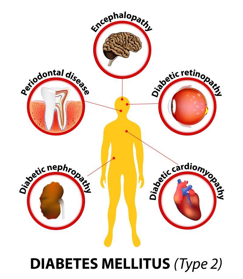 diabet și vedere de ce tremură ochii
